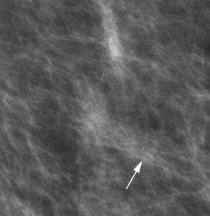 14: Expression en imagerie des cancers du sein: Mammographie ...