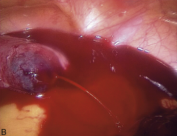 4 traitement c liochirurgical de la grossesse extra - Fausse couche grossesse extra uterine ...
