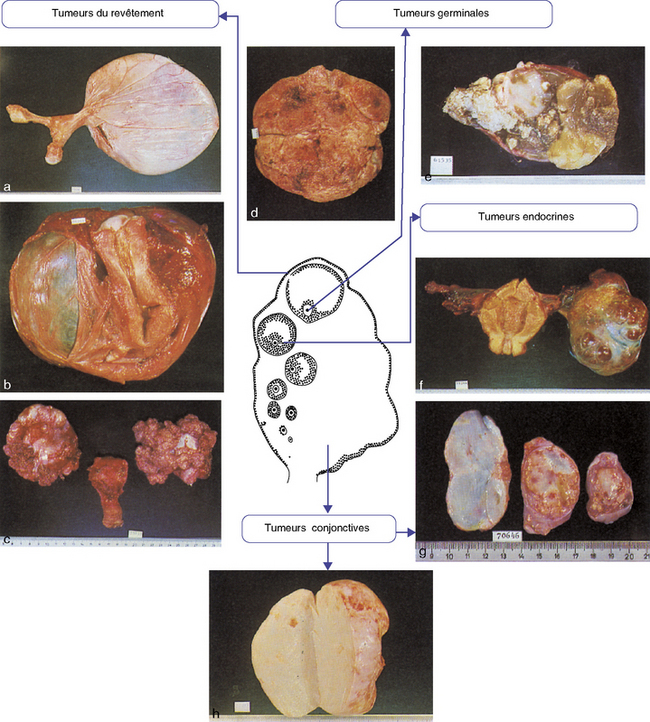 14: Tumeurs de l'ovaire   Medicine Key