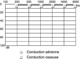 87 Item 294 Alteration De La Fonction Auditive Medicine Key